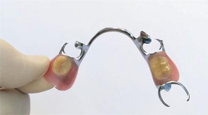 ฟันปลอมถอดได้โลหะ1