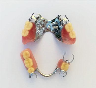 ฟันปลอมถอดได้โลหะ2