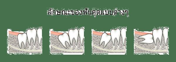 ผ่าฟันคุดที่ไหนดี