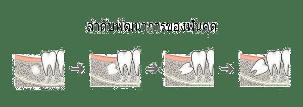 ถอนฟันคุดที่ไหนดีแนะนำ