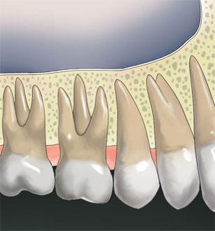 ขากรรไกรบนปกติไม่ต้องฝังรากฟันเทียม